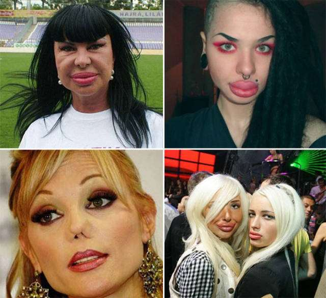 plastic_surgery_fails_that_will_make_you_love_your_natural_looks_640_09
