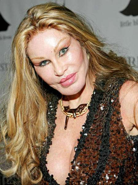 plastic_surgery_fails_that_will_make_you_love_your_natural_looks_640_10