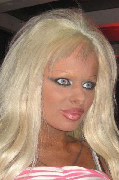 plastic_surgery_fails_that_will_make_you_love_your_natural_looks_640_11