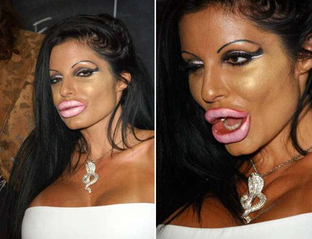plastic_surgery_fails_that_will_make_you_love_your_natural_looks_640_13