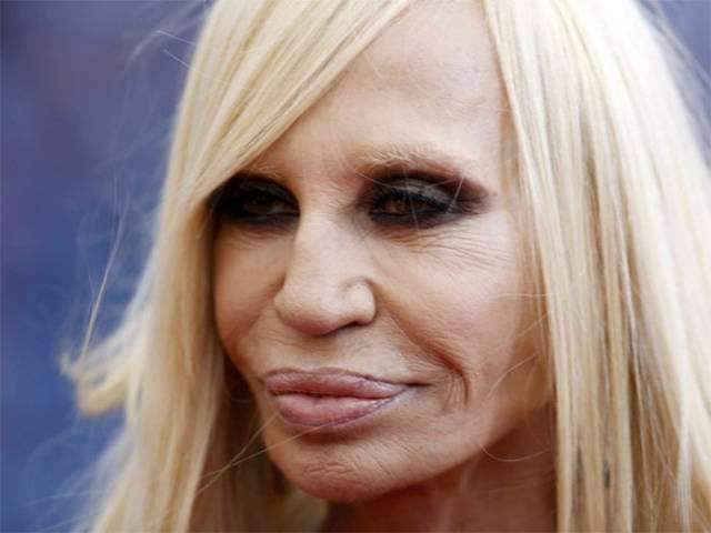plastic_surgery_fails_that_will_make_you_love_your_natural_looks_640_15