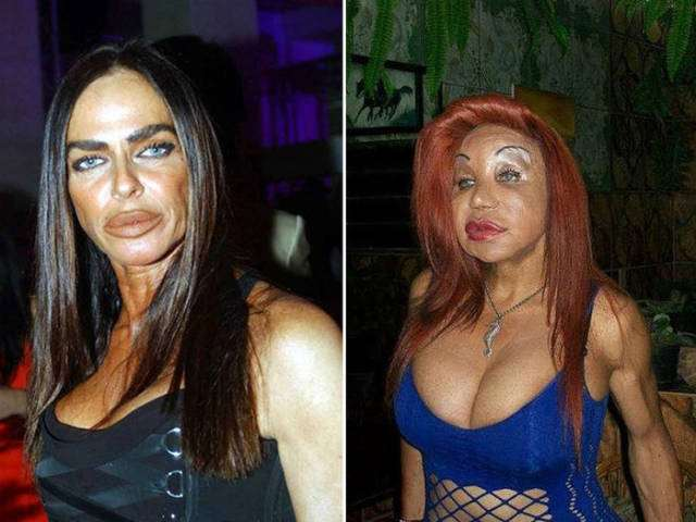 plastic_surgery_fails_that_will_make_you_love_your_natural_looks_640_16