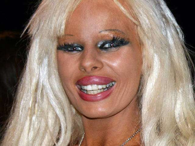 plastic_surgery_fails_that_will_make_you_love_your_natural_looks_640_18