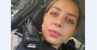 【グロ注意】麻薬押収時に顔に銃撃をくらって皮膚がベロベロにむけてしまった美人警察官…