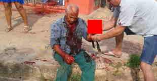 【閲覧注意】マチェ―テで襲われ左手を切断され頭を一部切り抜かれるところを撮影した動画。
