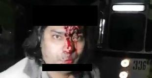 【衝撃動画】頭蓋骨がベコベコになるまで自ら壁に頭を打ち付けて自殺を試みようとしているキ○ガイ男性