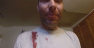 【微グロ注意】けっこうな深手の傷を笑顔でビデオに撮って紹介してくれてるファンキーなおじさんwwww
