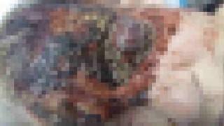【超閲覧注意】皮膚蝿蛆症(ハエ蛆症)により顔面、特に目の辺りに蛆虫に寄生されている老人…。※グロいです!
