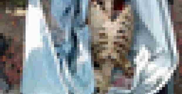 """【閲覧注意】ブラジルのアマゾン川に落ちた少年は """"たった数時間で"""" こうなります"""