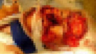 【画像】クマに襲われ顔に深い傷を負った女性・・・その1年後