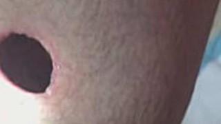 鉄砲で撃たれると人体にはこんなに綺麗な穴が開くらしい。