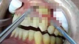 歯茎の化膿している部位に器具を突き刺すと・・・