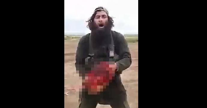 【閲覧注意】ストレッチャーに乗せられていたイラク兵の首を切りとりアッラーフアクバル