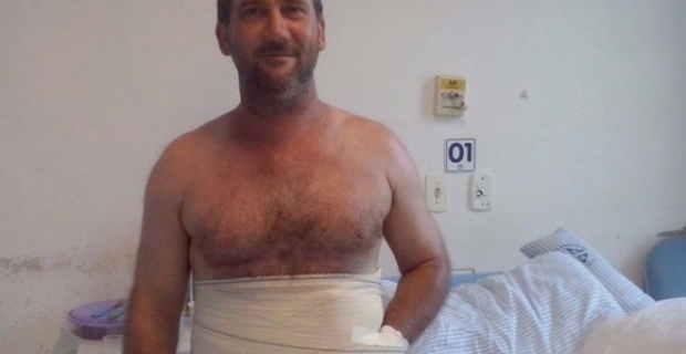 作業機械で手を負傷した男性、そのまま手を腹部にくっつけて温存
