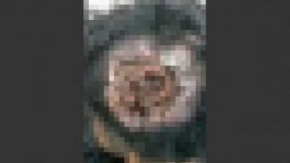 【グロ注意】自分の頭部をウジ虫に食べられてることを触って確認する男性の動画。