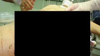【グロ画像】地雷踏んだ女の傷がマ●コまで達してるんだが・・・ ※閲覧注意