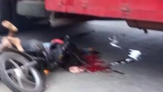 【閲覧注意】原付とトラックの事故で頭が二つに割れてしまった女性…。