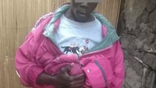 【衝撃画像】病気で異常な大きさになってしまったペニスの男性。