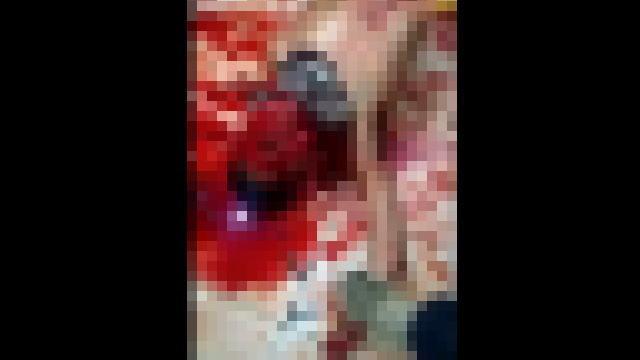 生きたまま顔面の皮を剥がれ両手首から手を切断された男性のモザイク有の画像
