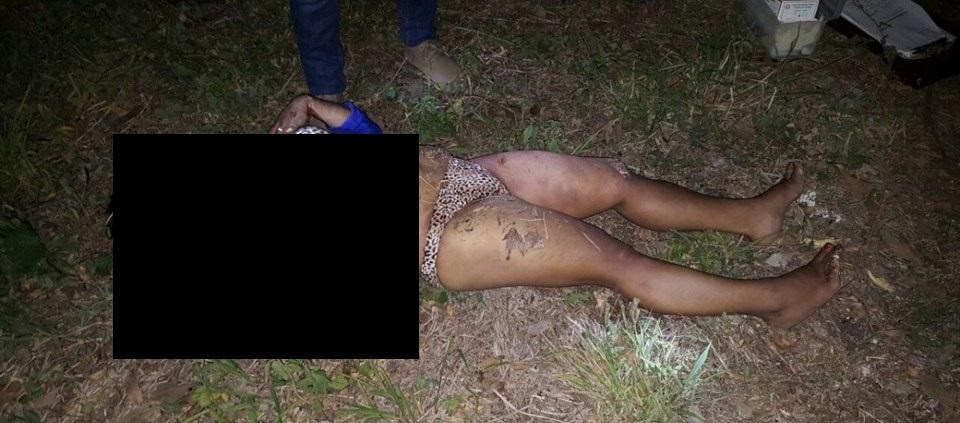 【グロ画像】ヒョウ柄パンツの女の子が路上で寝てたから二度見したけど死体だった件