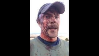 【閲覧注意】グリズリーに襲われた直後に自撮り動画をSNSにアップするおじさん。