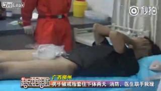 【動画】結婚指輪をペニスにハメた男性、取れなくなり病院送りになる。