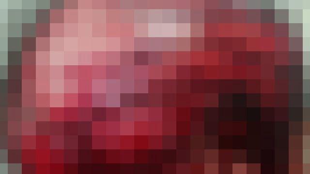 【超!閲覧注意】11歳の少女、ゴーカートのタイヤに髪が巻き込まれ、恐ろしい状態に…