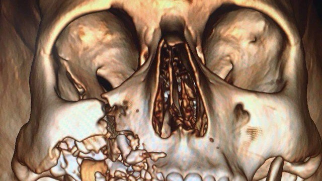 【閲覧注意】電子タバコは絶対に使うな! 最悪こうなるぞ…(画像)